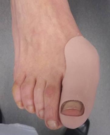 orthoplastie HV charlotte